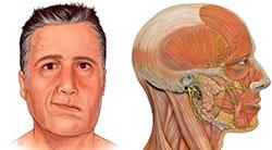 Nevropatiya-litsevogo-nerva