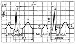 elektrokardiogramma-brovaru