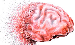 atrofiya-golovnogo-mozga