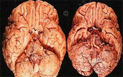cerebralnaja-atrofija