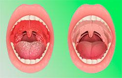 Тонзелит горла